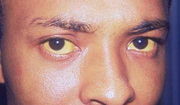 Hepatitis, Gelbfärbung (http://commons.wikimedia.org/)