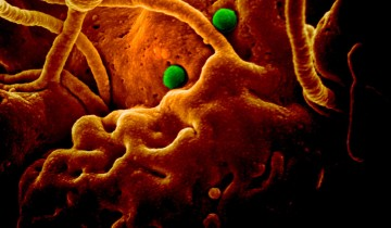 - MERS-CoV particles on camel epithelial cells